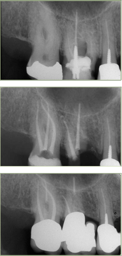 devitalizzare un dente devitalizzazione pisa
