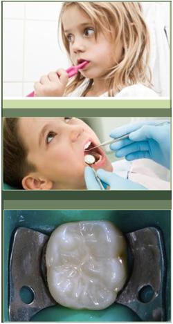 Dentista bambini Pisa, esperto in Odontoiatria Pediatrica, Pedodonzia