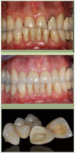 Protesi dentali Pisa fisse o rimovibili