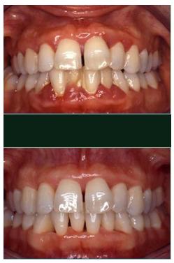 Pulizia denti prima e dopo, Igiene Orale